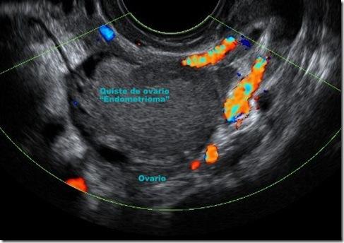 Endometriosis Ovárica