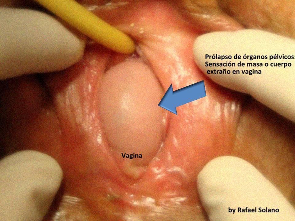 Entrada de la vagina blanca - Ginecología -